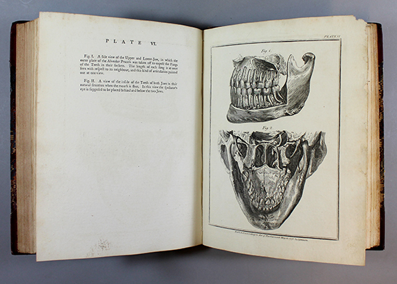 An image of&nbsp;<em>The Natural History of the Human Teeth: Explaiing their Structurem Use, Formation, Growth, and Diseases</em> by John Hunter